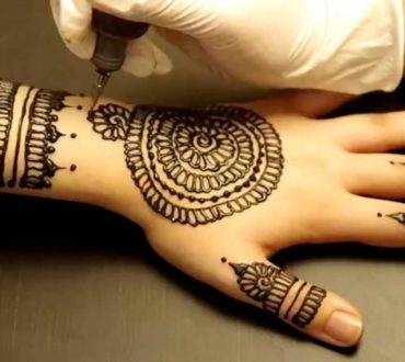 Unexpected Poisoning from an Exotic Source – Henna